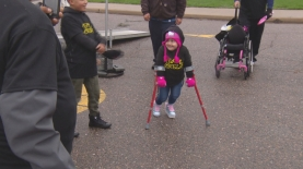 spinabifida-walk-21